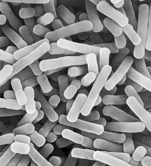 Lactobacilli under the microscope